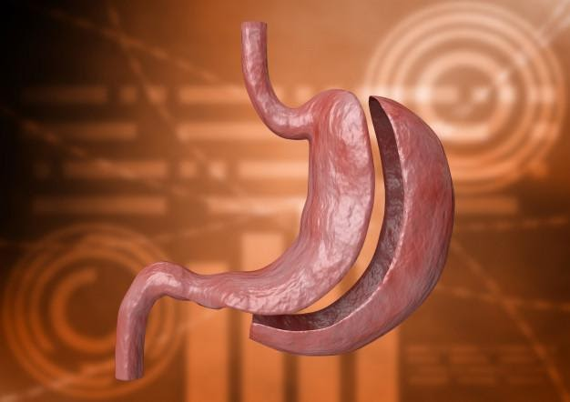 Gastric sleeve surgery, what does it consist of?